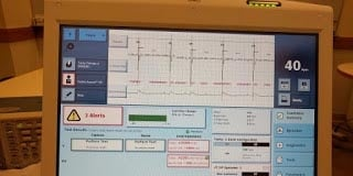 Correlation is Not Causation: Electrical Analysis of St. Jude Implant Shows Normal Pacing